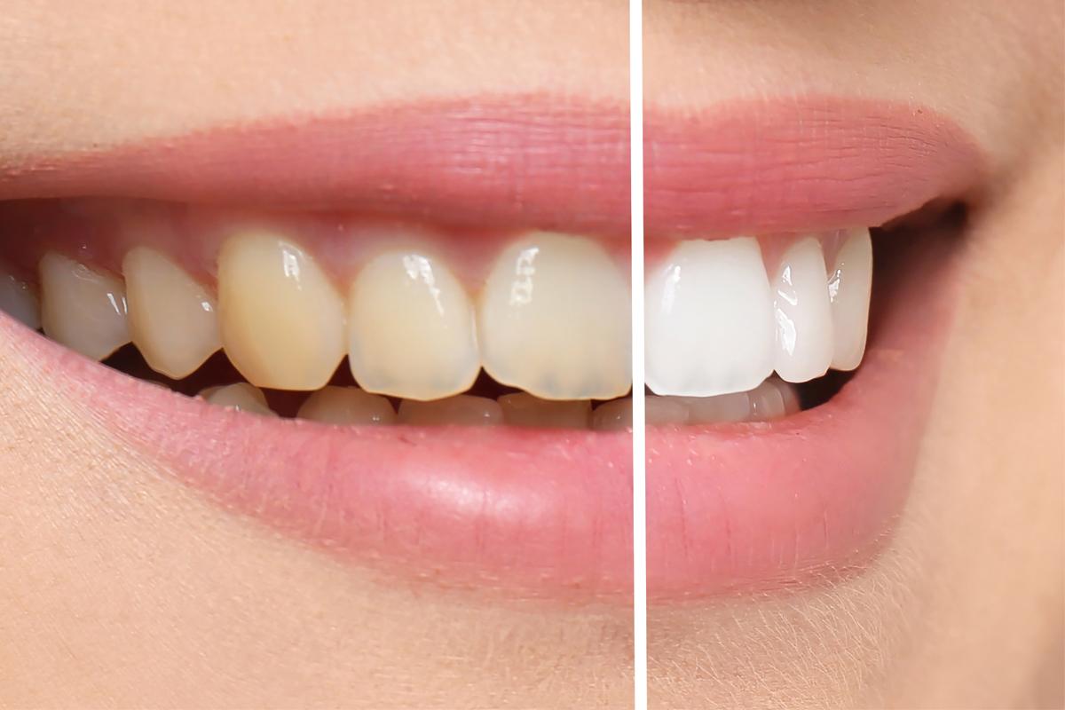 Estetica Dental Sabadell